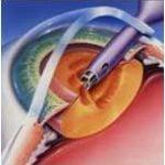 операция катаракты